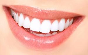 tandblekning-hemma-resultat_94597301 (1)